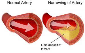 plaque cholesterol veine